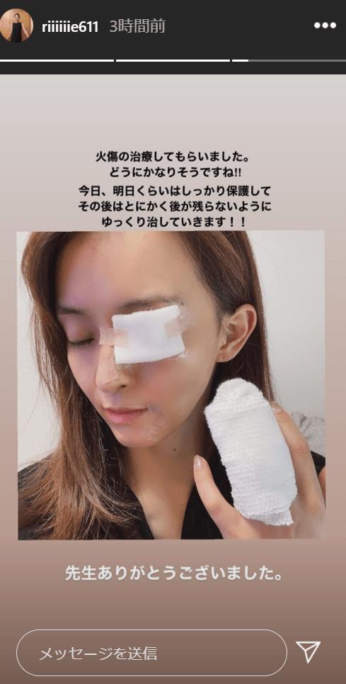 【悲報】元体操日本代表  田中理恵さん 顔面に大やけどを負ってしまう